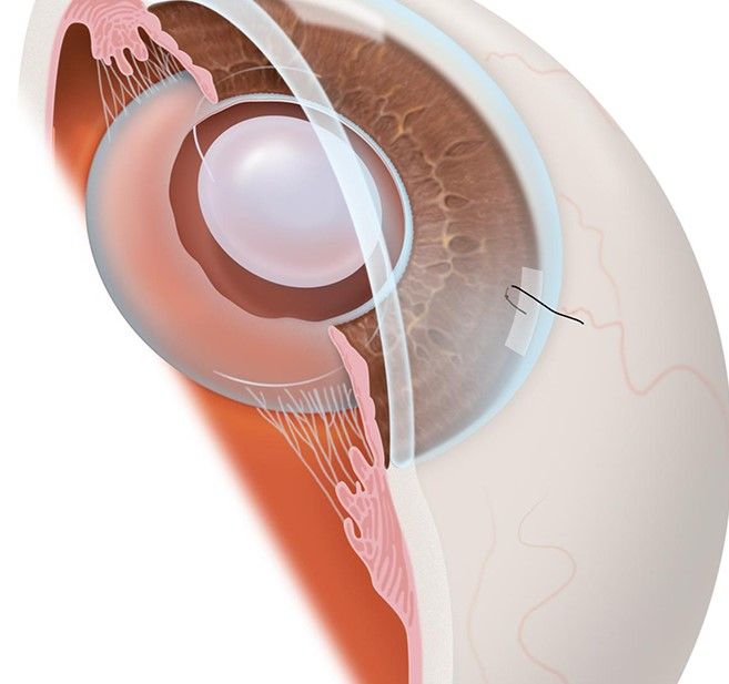 How much does cataract surgery cost?